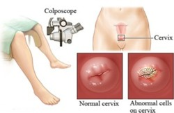 How Can I Check My Cervix At Home